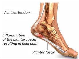 kenny orthotics bendigo common foot conditions : heel diagram - findchart.co